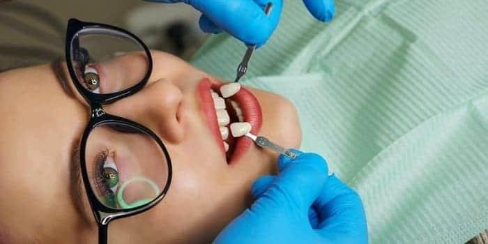 لومینیرز چگونه روی دندانها قرار داده میشود