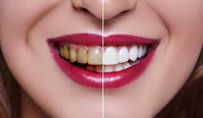 مزایای لومینیر دندانپزشکی